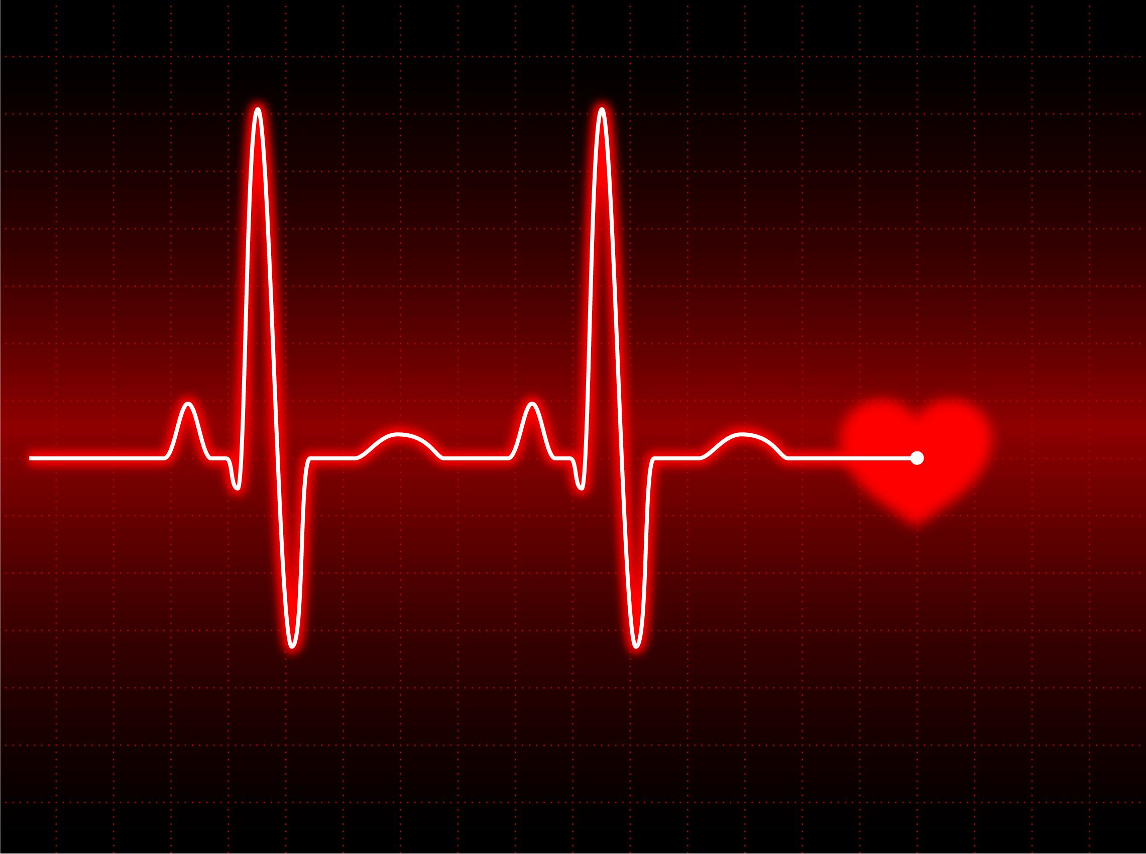 El Resultado De Los Soplos Cardíacos