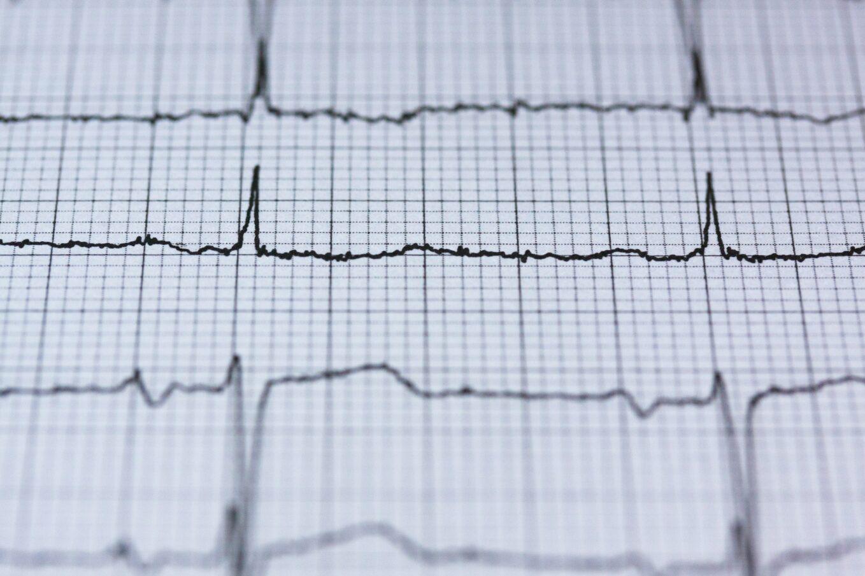 que causa el paro cardiaco