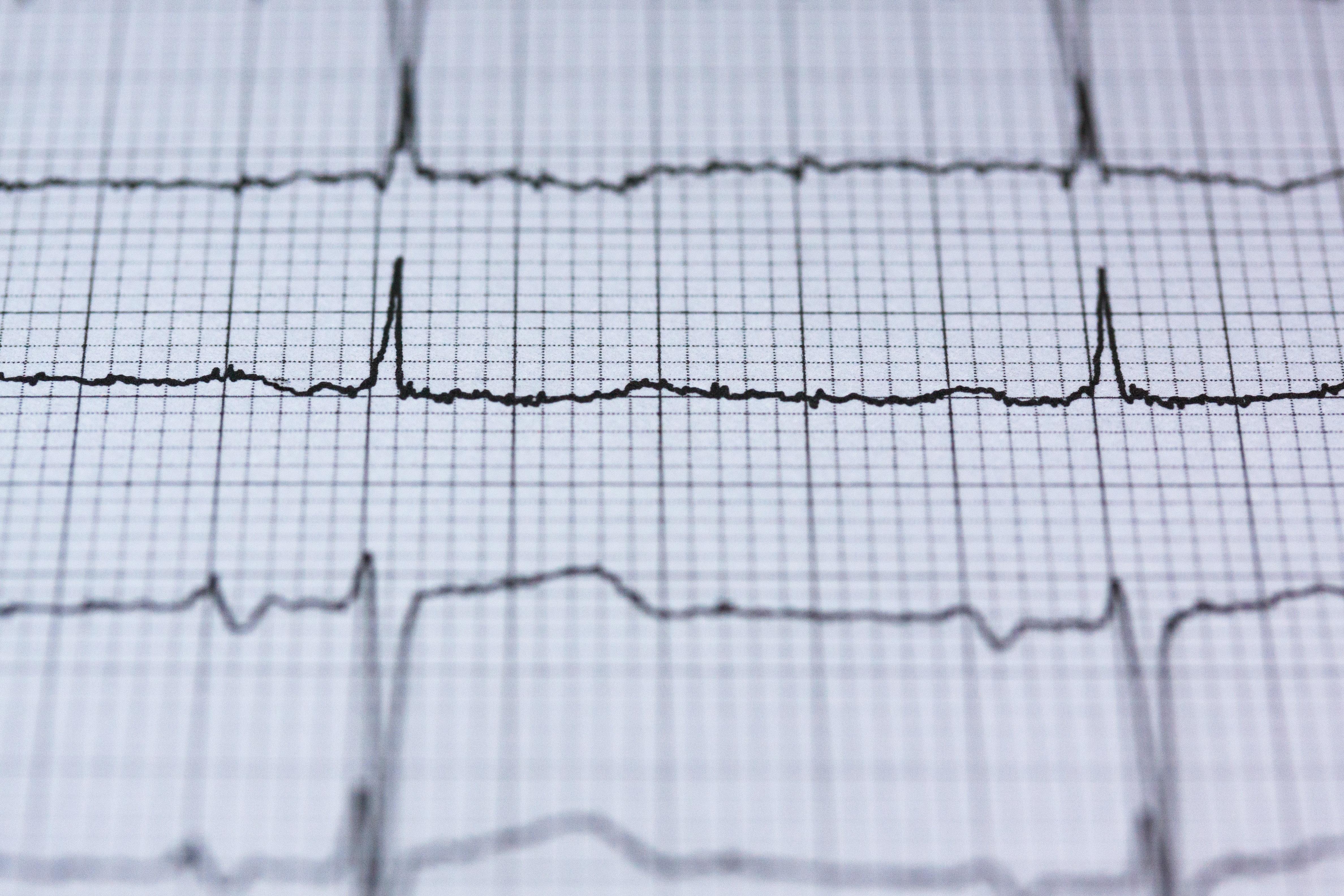 La diferencia entre un infarto y un paro cardíaco4.6 (51)